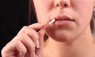 Як швидко вилікувати застуду на губах ... Роз`яснює фахівець