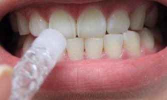 Як відбілити зуби в домашніх умовах