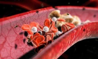 Як знизити холестерин в крові ... Роз`яснює фахівець