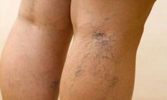 Як вилікувати варикоз на ногах
