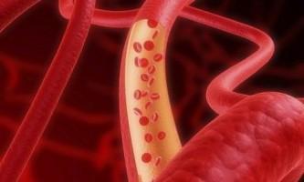 Лікуємо судини: артерії, капіляри, вени