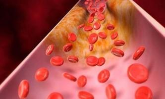 Низький холестерин: причини і способи лікування