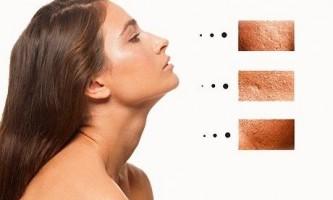 Основні причини розширених пор на обличчі