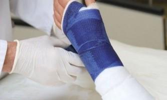 Переломи кісток - ознаки, традиційне і народне лікування, самомасаж