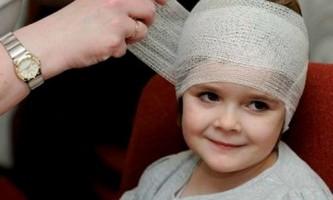 Ознаки та симптоми струсу мозку у немовляти